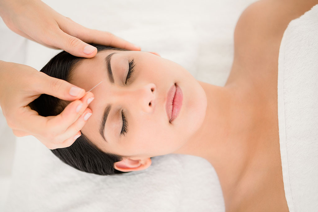 Woman having acupuncture needle place in forehead
